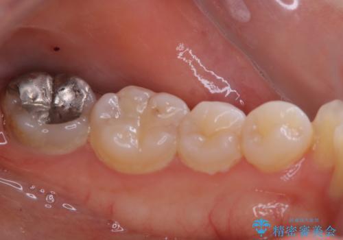 1年ぶりの歯科医院でクリーニングの治療前