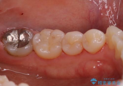 1年ぶりの歯科医院でクリーニングの治療後