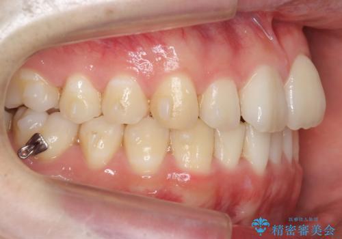 前歯のがたつき・すれちがい咬合を非抜歯で。流行の、格安マウスピースでは難しい、ワンランク上の治療の治療中