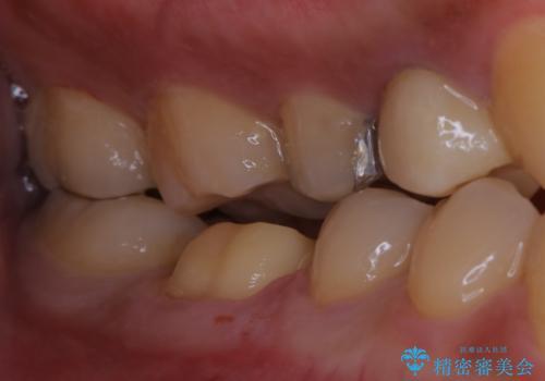 銀歯をセラミックにの治療中
