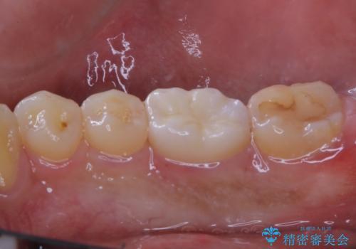 銀歯をセラミックにの治療後