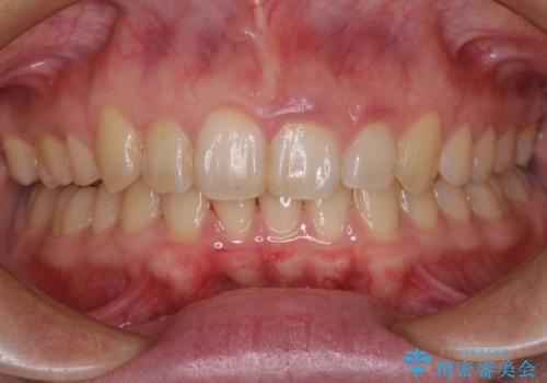気になる八重歯を治したい <span class=