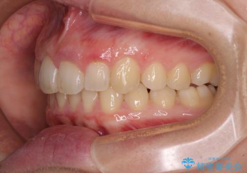 気になる八重歯を治したい インビザラインと補助装置を用いた抜歯治療の治療後