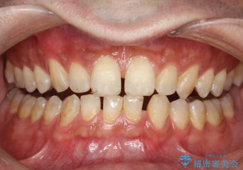 タバコ・コーヒーによる歯の着色落としの治療前