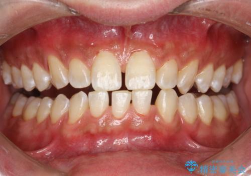 タバコ・コーヒーによる歯の着色落としの治療後