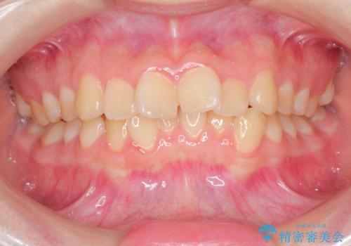 上下の前歯のガタガタを目立たず治したい <span class=
