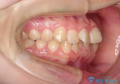 上下の前歯のガタガタを目立たず治したい インビザラインによる見えない矯正の治療前