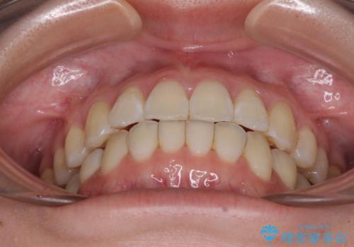 海外留学をしながら歯並びを整えたい インビザラインによる矯正治療の治療後