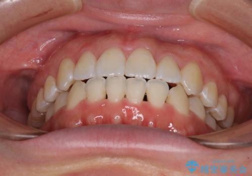 前歯のデコボコを治したい ワイヤー矯正の治療後