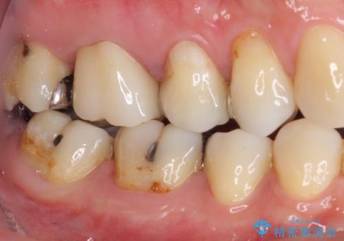 痛む奥歯 セラミッククラウンによるむし歯治療の治療後