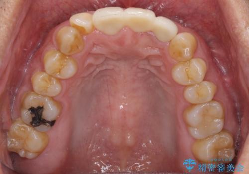 不自然な前歯のブリッジをオールセラミックできれいにの治療後
