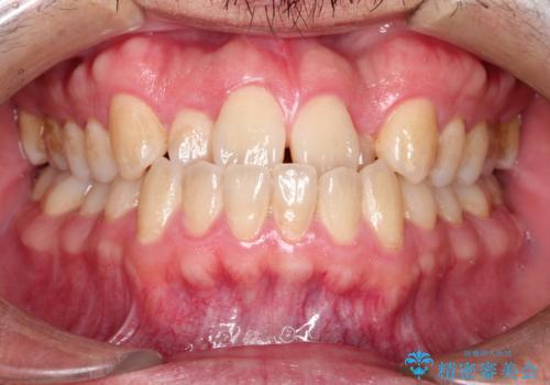 前歯が反対にかんでいる インビザラインとワイヤーを組み合わせた矯正治療の症例 治療前