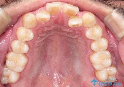 前歯が反対にかんでいる インビザラインとワイヤーを組み合わせた矯正治療の治療前