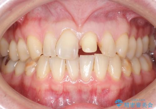前歯のつめもの きれいにしたい 30代男性の治療中