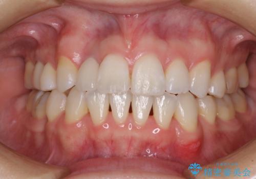 変色した前歯 オーダーメイドタイプのオールセラミッククラウンの治療後
