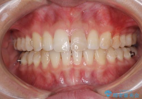 気になる前歯を治したい インビザライン矯正とオールセラミッククラウンの治療中