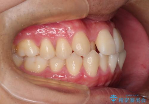 前歯のクロスバイトとガタつきをマウスピース矯正(インビザライン )で治療した症例の治療前
