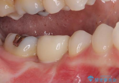 折れてしまった奥歯 下の奥歯のインプラント治療の治療後