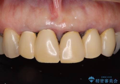 汚れてしまった保険のクラウン 前歯のオールセラミックの治療前