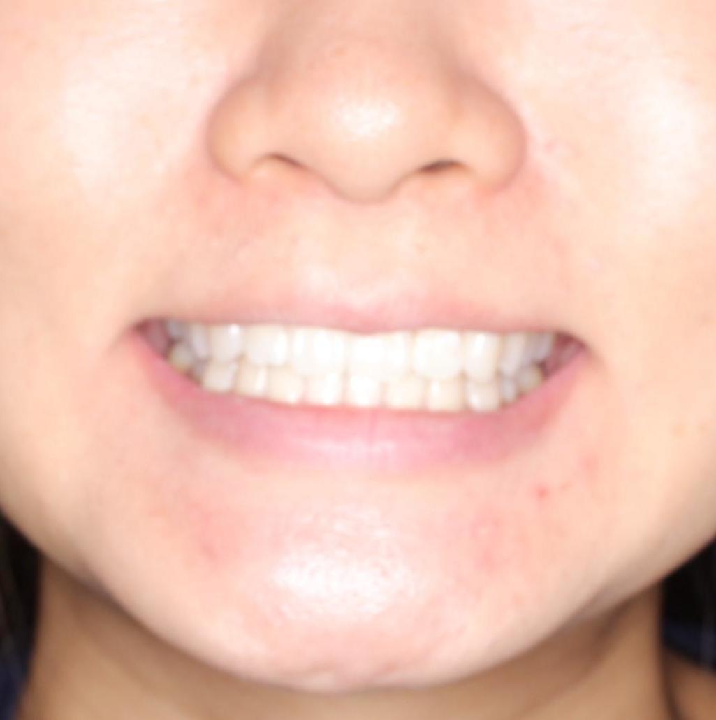 前歯の突出、深い噛み合わせ、ガタつきをマウスピース矯正(インビザライン)で治療した症例の治療後(顔貌)
