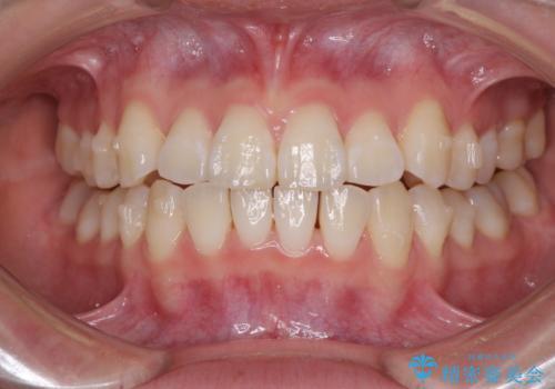 海外留学をしながら歯並びを整えたい インビザラインによる矯正治療の治療中