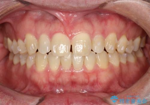 前歯の真ん中の隙間を閉じたい インビザラインによる目立たない矯正の治療中