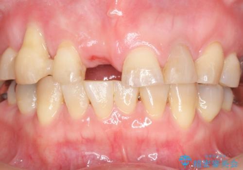 過度な咬合力 歯ぎしりで抜けた歯の欠損補綴の治療前