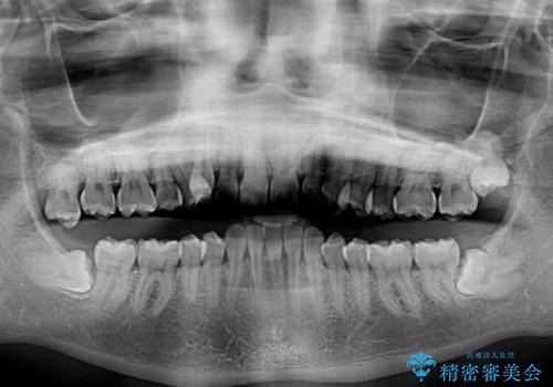 気になる八重歯を治したい インビザラインと補助装置を用いた抜歯治療の治療前