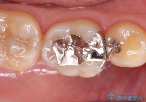 歯の神経を残す、丁寧な虫歯の除去の治療前