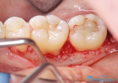 歯周病 再生治療で歯を残すの治療中