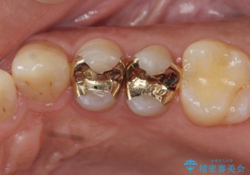 近所で入れた銀歯に食べ物が挟まるの治療後