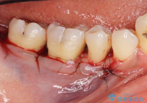 歯周病 再生治療で歯を残すの治療後