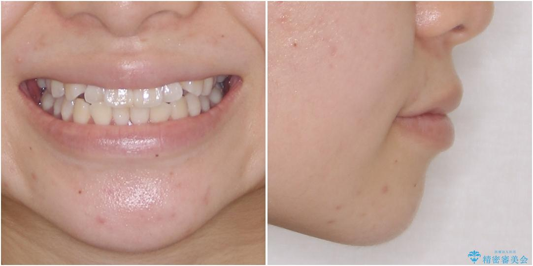 海外留学をしながら歯並びを整えたい インビザラインによる矯正治療の治療前(顔貌)