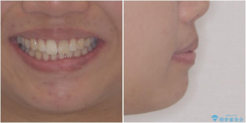 気になる前歯を治したい インビザライン矯正とオールセラミッククラウンの治療前(顔貌)