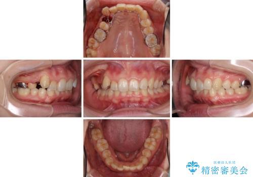 気になる八重歯を治したい インビザラインと補助装置を用いた抜歯治療の治療中