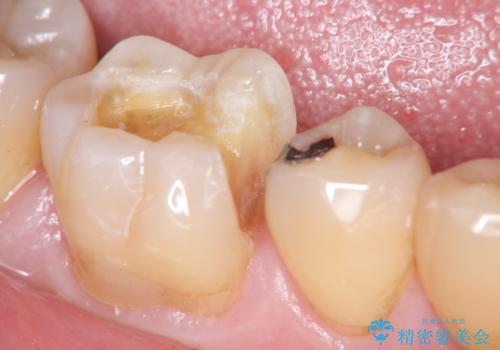 歯の神経を残す、丁寧な虫歯の除去の治療中
