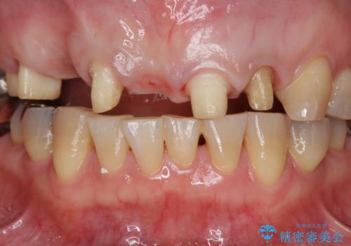 過度な咬合力 歯ぎしりで抜けた歯の欠損補綴の治療中