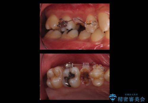 放置した虫歯 歯ぐきの中まで虫歯でも、しっかり健康的な部分を引っ張り出して、きちんと処置します。の治療中
