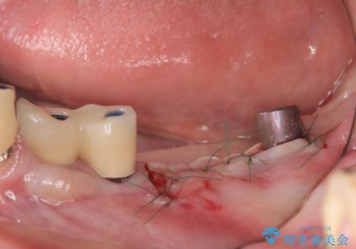 [歯の破折] インプラント埋入を行うための大規模骨造成の治療中