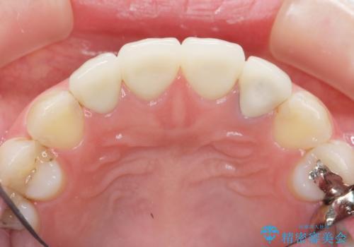前歯の見た目を改善したいの治療後