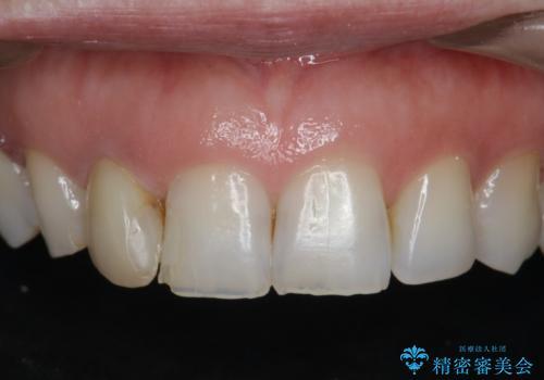前歯の違和感 失活歯の根管治療とセラミック治療の症例 治療前