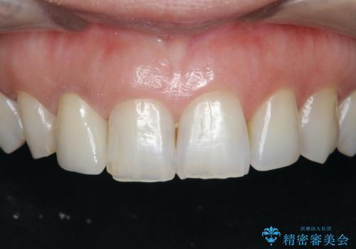 前歯の違和感 失活歯の根管治療とセラミック治療の症例 治療後