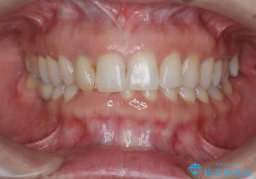 前歯の違和感 失活歯の根管治療とセラミック治療の治療前