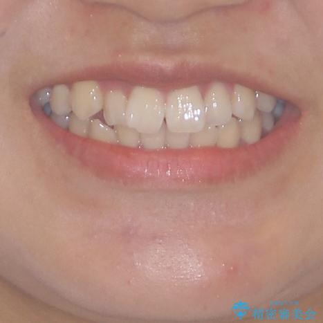 短期間で治療したい 目立たないワイヤー装置での非抜歯矯正の治療前(顔貌)