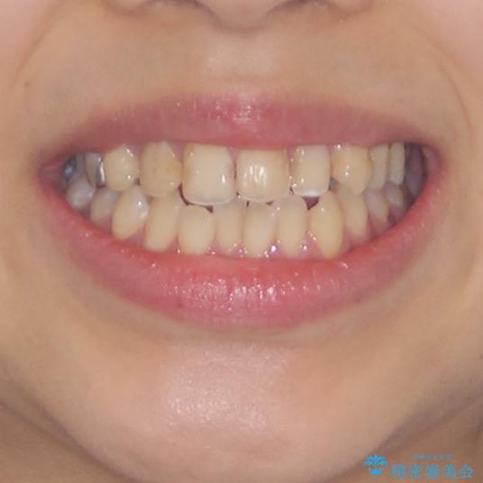 後戻りを治したい 骨格的なズレの大きい方のインビザライン矯正の治療前(顔貌)