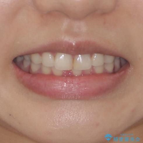矯正治療の後戻り ガタガタになった前歯の部分矯正の治療前(顔貌)