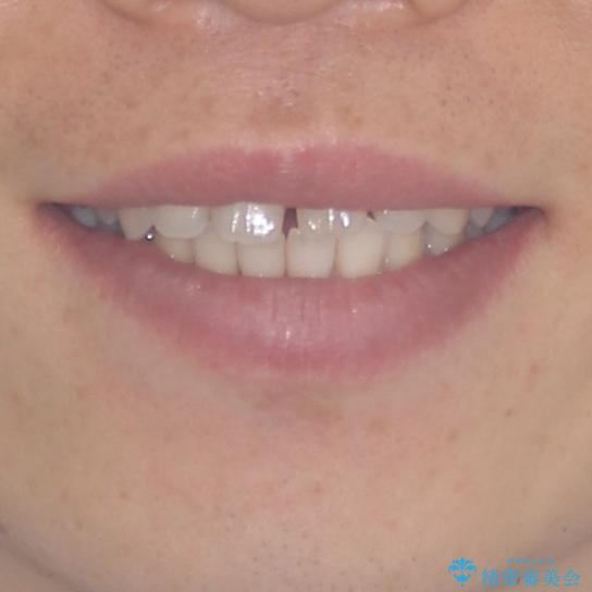 すきっ歯の改善 インビザライン矯正治療の治療前(顔貌)