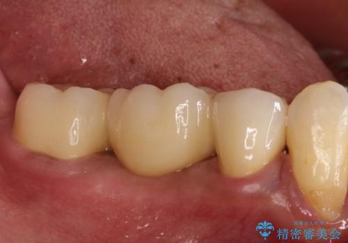 奥歯が痛い。ブリッジによる欠損補綴の治療後