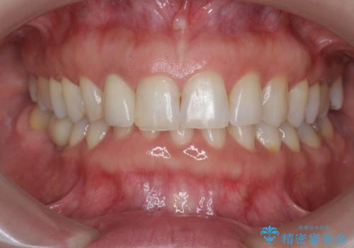 前歯の違和感 失活歯の根管治療とセラミック治療の治療後