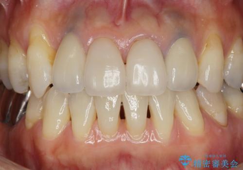 歯ぐきの黒ずみ クラウンやりかえによる改善の治療後